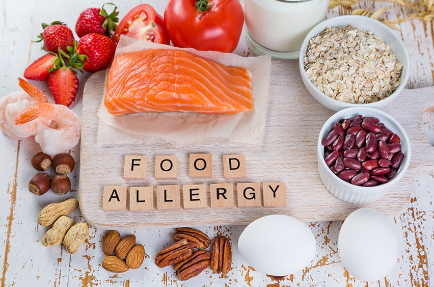 Food Intolerances and Allergies   Rory Hornstein   Registered Dietitian   Calgary and Surrounding Areas