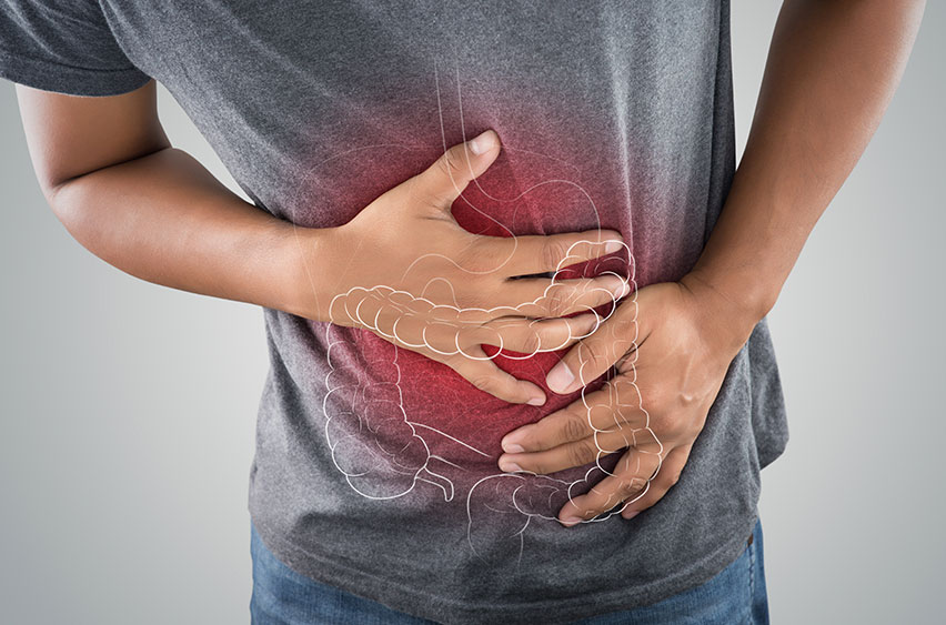Small Intestine Bacterial Overgrowth (SIBO)   Rory Hornstein   Registered Dietitian   Calgary and Surrounding Areas